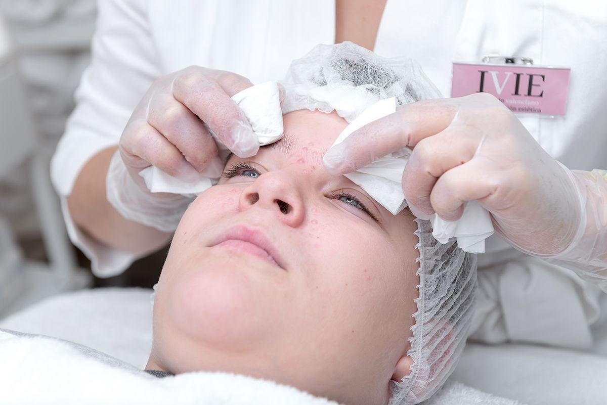tratamiento estetica para el acne en la eliana