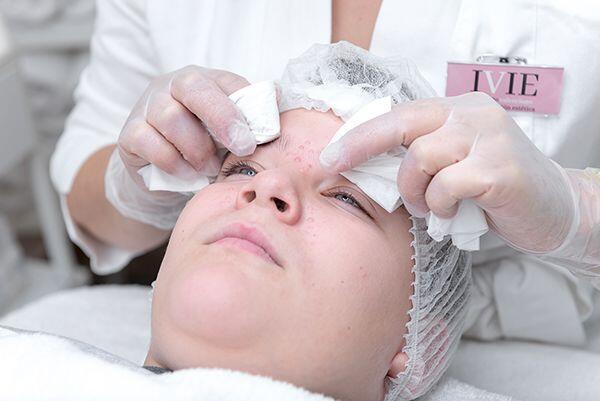 tratamientos estetica para el acne en la eliana