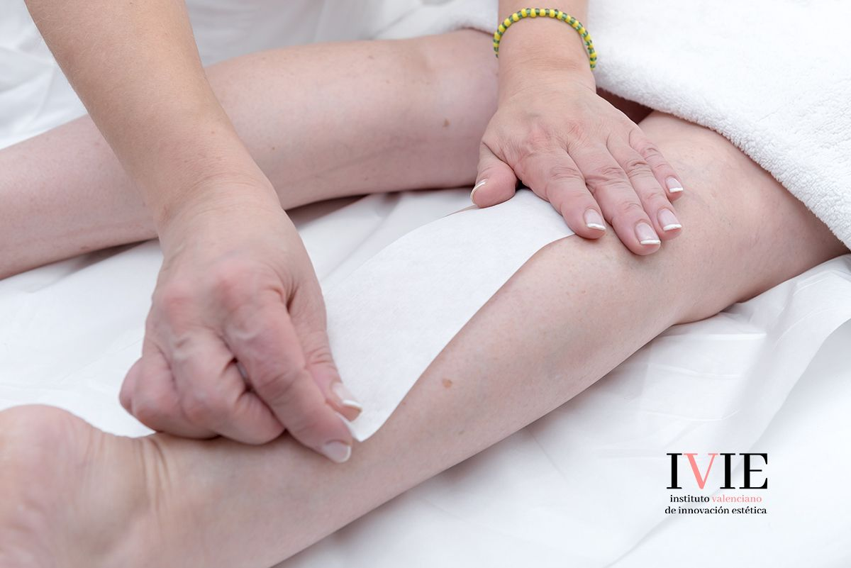 tratamiento depilacion laser pobla vallbona