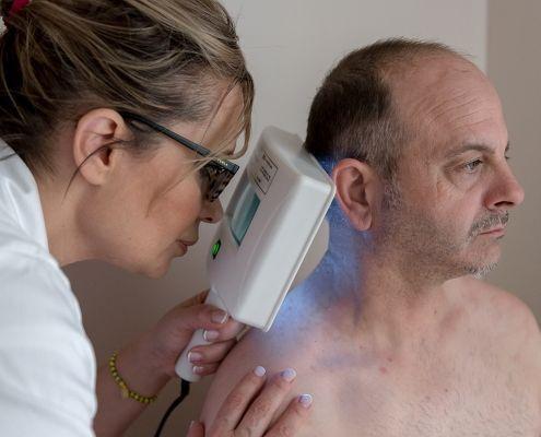 eliminar manchas en la piel valencia