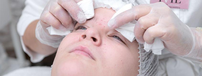 tratamiento acne valencia