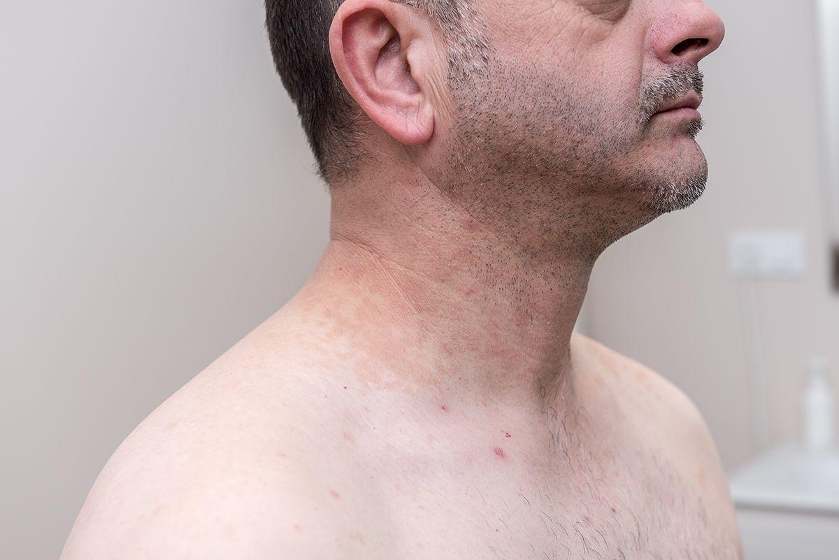 tratamiento hiperpigmentacion exposicion sol valencia