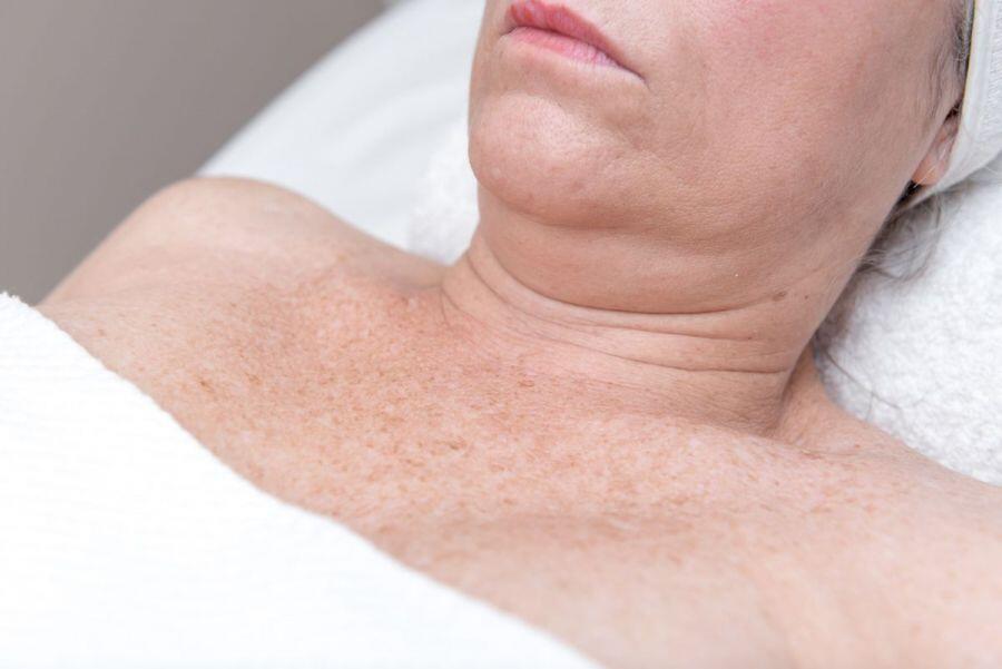 reafirmar cuello escote sin cirugía en valencia