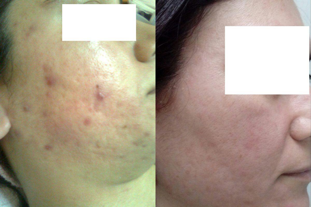 eliminacion cicatrices acne valencia