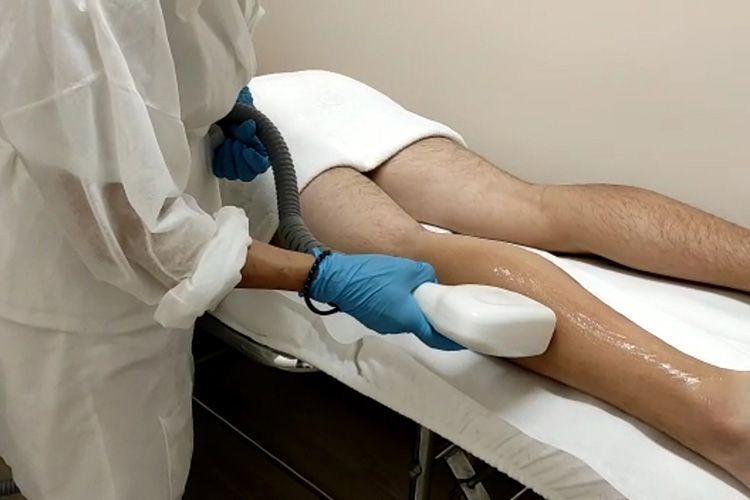 depilacion laser hombres valencia