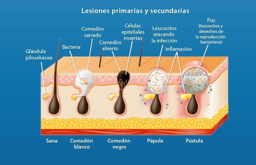 piel sana acne