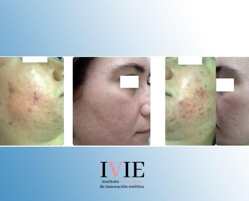 acne severo adultos