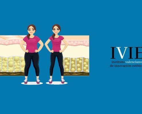 eliminacion de grasa localizada sin cirugia