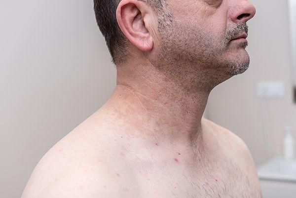 eliminacion manchas piel valencia